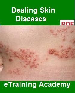 Dealing Skin Diseases